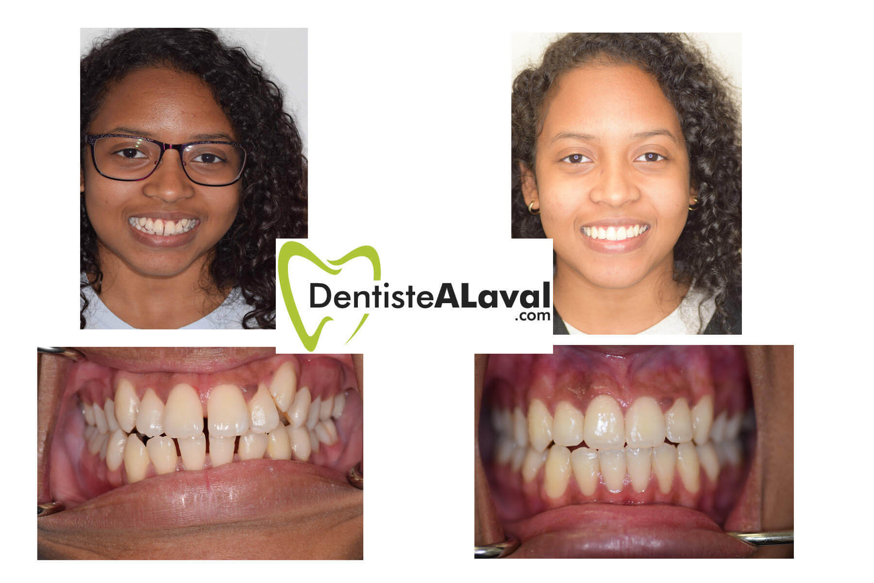 before after invisalign