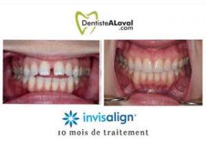 alignement invisalign laval dentiste